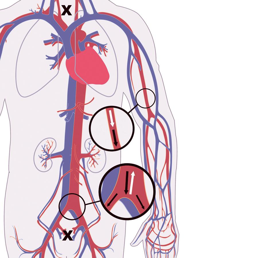 blodkärlen och blodets väg - arteriograf mäter funktionen
